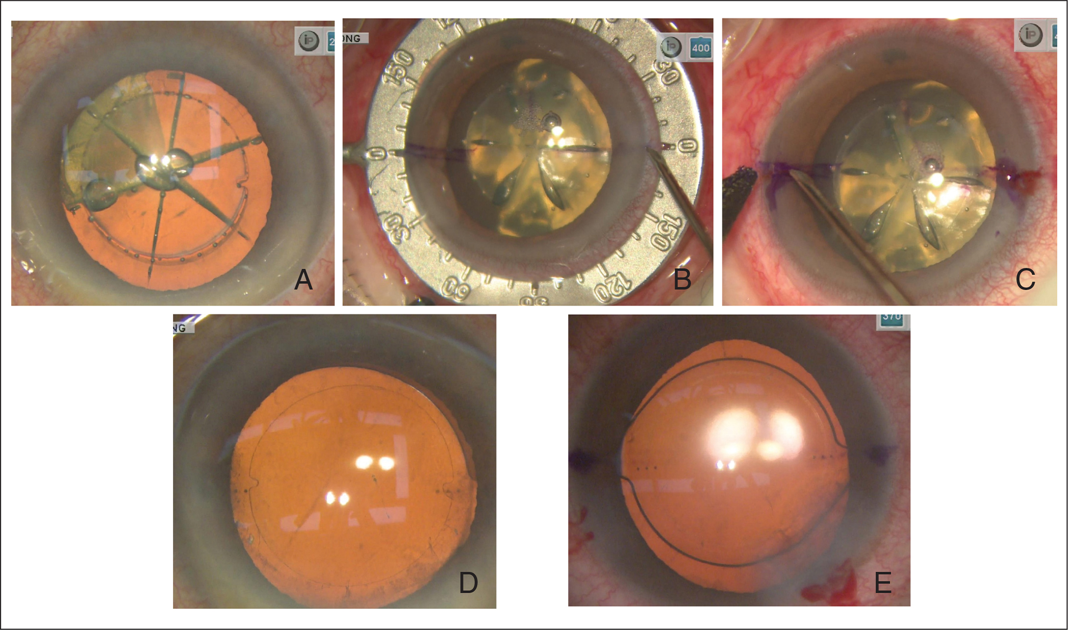 (A) The marks are two small tabs at the capsulotomy edge with a height of 300 µm and an arc length of 10° at their base. (B) With the guidance of the previously marked reference marking, axis marking is performed using a Mendez ring. (C) The corneal marker was made by a 25-gauge needle with a tip stained with a sterile blue ink. (E) For the femtosecond laser capsular marking group, the IOL was aligned to the target axis according to the two small tabs at the capsulotomy edge. (F) For the manual marking group, the IOL was aligned to the target axis according to the corneal marker.