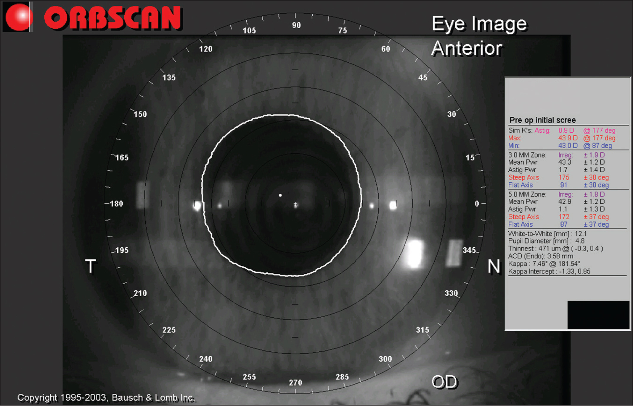 Orbscan II whole eye view with pupil recognition software (Bausch & Lomb). The white line is displayed automatically to match the circumference of the pupil.