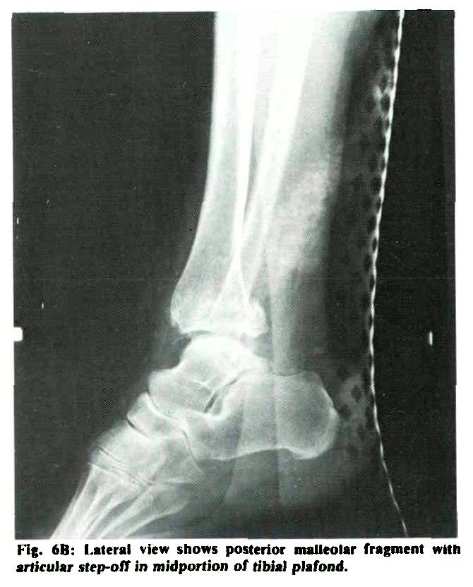 Reconstruction of Ankle Malunion: Indications and Results