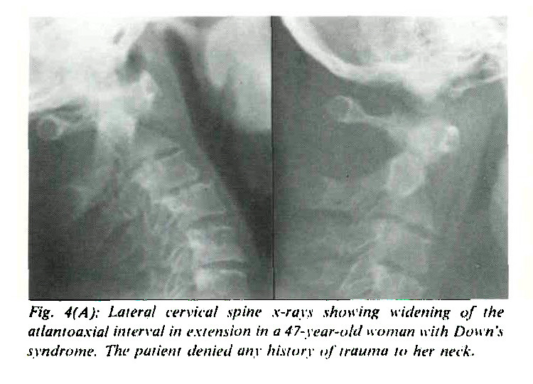 Fig. 4(A); Lateral cervical spine x-rays showing widening of the atlantoaxial interval in extension in a 47-year-old woman with Down's syndrome. The patient denied any history of trauma to her neck.