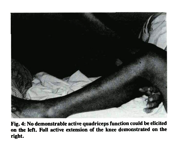 Fig. 4: No demonstrable active quadriceps function could be elicited on the left. Full active extension of the knee demonstrated on the right.