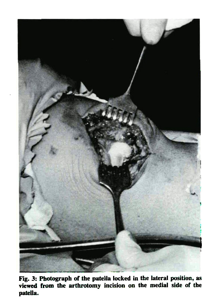 Fig. 3: Photograph of the patella locked in the lateral position, as viewed from the arthrotomy incision on the medial side of the patella.
