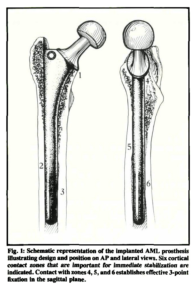 biological fixation of a modified moore prosthesis