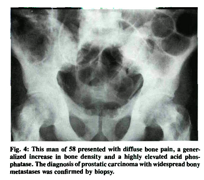 Fig. 4: This man of 58 presented with diffuse bone pain, a generalized increase in bone density and a highly elevated acid phosphatase. The diagnosis of prostatic carcinoma with widespread bony metastases was confirmed by biopsy.