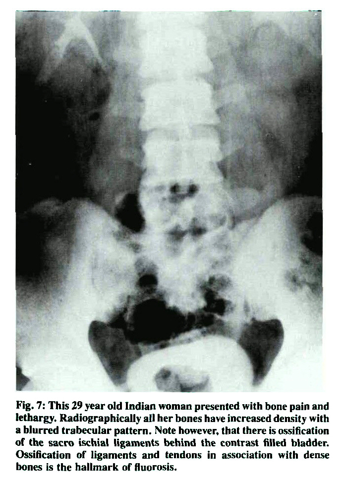 Fig. 7: This 29 year old Indian woman presented with bone pain and lethargy. Radiographically all her bones have increased density with a blurred trabecular pattern. Note however, that there is ossification of the sacro ischial ligaments behind the contrast filled bladder. Ossification of ligaments and tendons in association with dense bones is the hallmark of fluorosis.