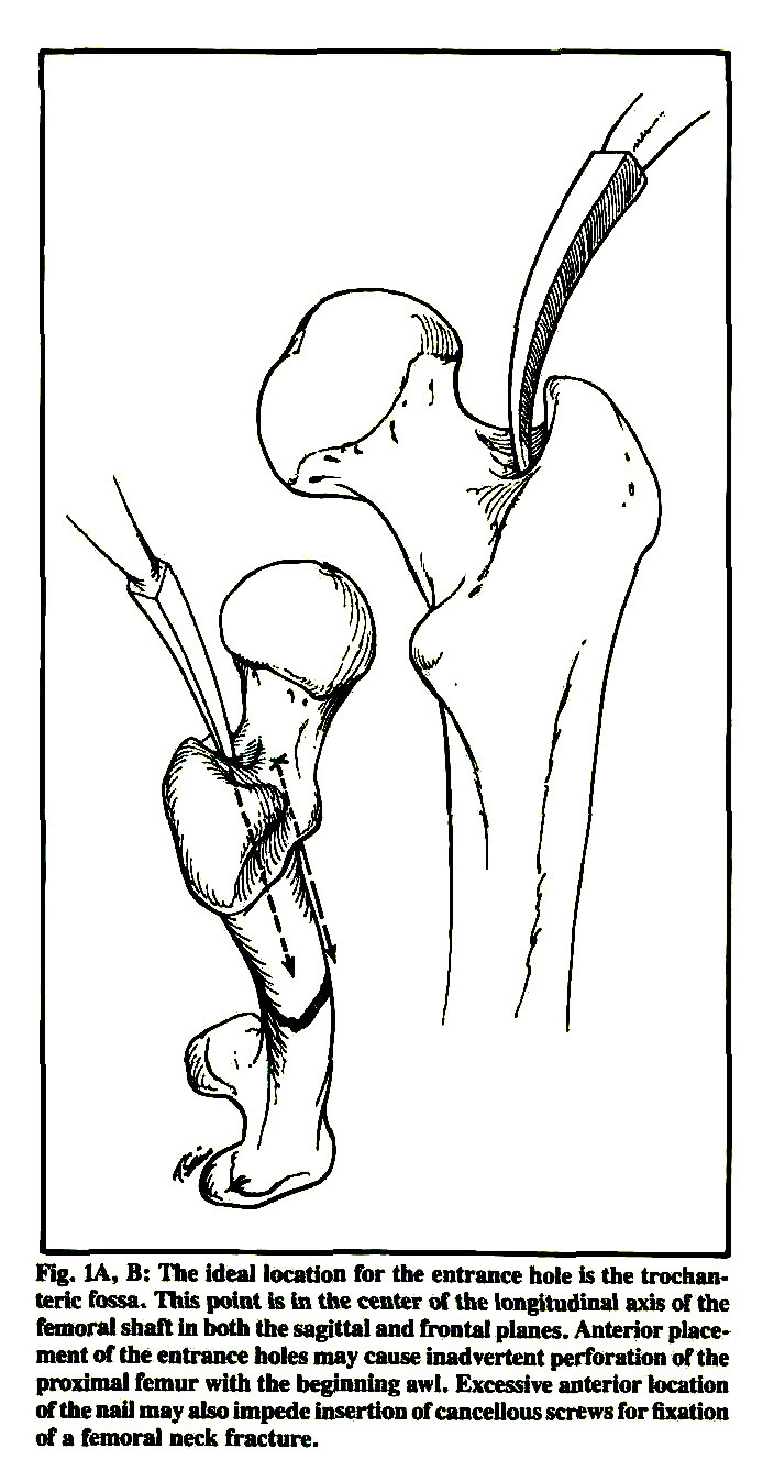 Concomitant Ipsilateral Fractures Of The Hip And Femur Treated With