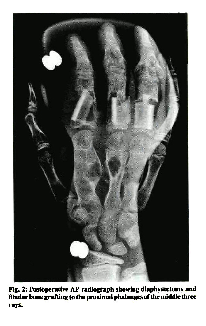Fig. 2: Postoperative AP radiograph showing diaphysectomy and fibular bone grafting to the proximal phalanges of the middle three rays.