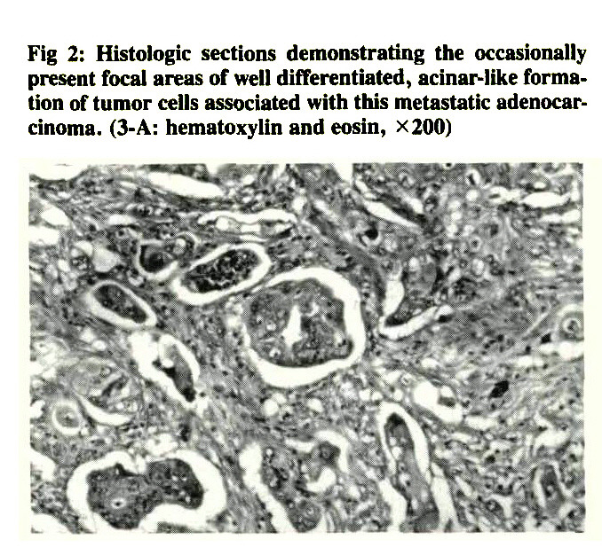 Fig 2: Histologic sections demonstrating the occasionally present focal areas of well differentiated, acinar-like formation of tumor cells associated with this metastatic adenocarcinoma. (3-A: hematoxylin and eosin, X200)