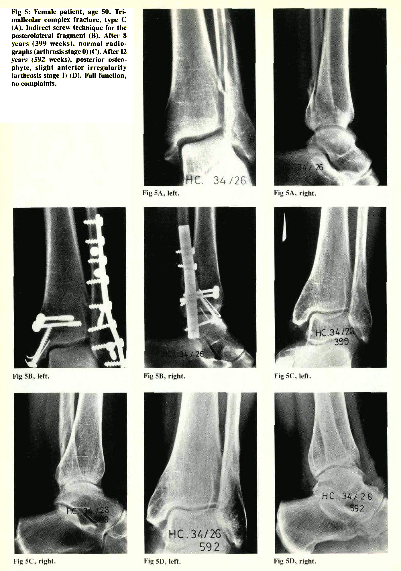 Trimalleolar Fractures: Late Results After Fixation of the Posterior
