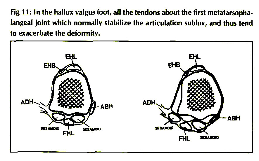 pathophysiology  anatomy  and biomechanics of hallux valgus