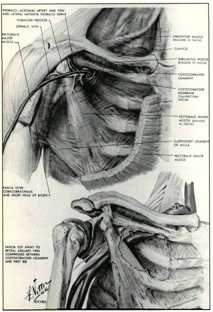 The Thoracic Outlet Syndrome