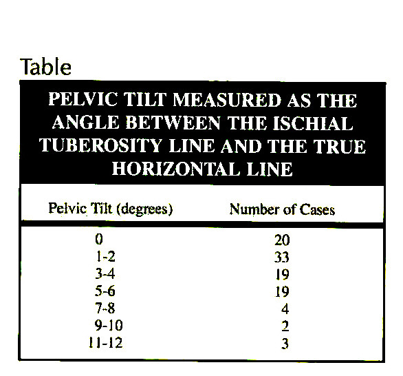 TablePELVIC TILT MEASURED AS THE ANGLE BETWEEN THE ISCHIAL TUBEROSITY LINE AND THE TRUE HORIZONTAL LINE