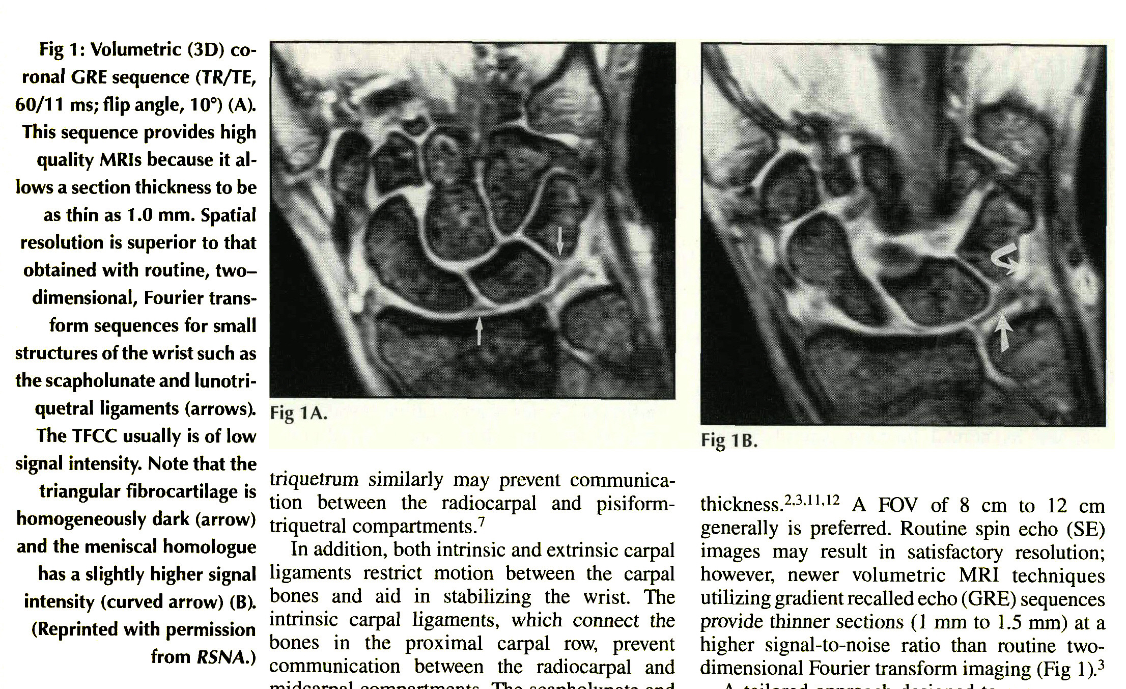 MAGNETIC RESONANCE IMAGING OF THE WRIST