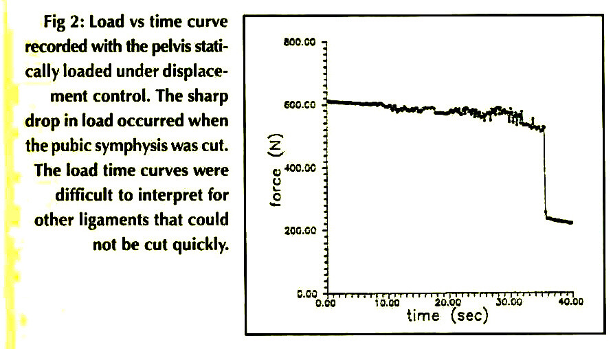 Fig 2: Load vs time curve recorded with the pelvis statically loaded under displacement control. The sharp drop in load occurred when the pubic symphysis was cut. The load time curves were difficult to interpret for other ligaments that could not be cut quickly.