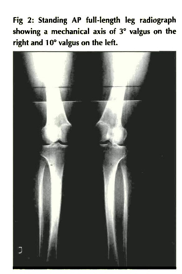 Fig 2: Standing AP full-length leg radiograph showing a mechanical axis of 3° valgus on the right and 1 0° valgus on the left.
