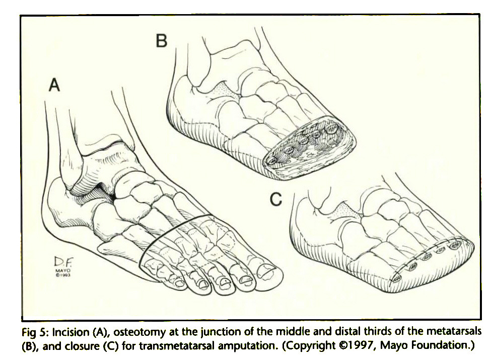 transtarsal chopart prothesis A brief introduction to lower limb prosthetics, from the edited h2g2 this figure doesn't include amputations of the transtarsal/partial foot, the hallux (big toe) or other toes chopart and lizfrac.