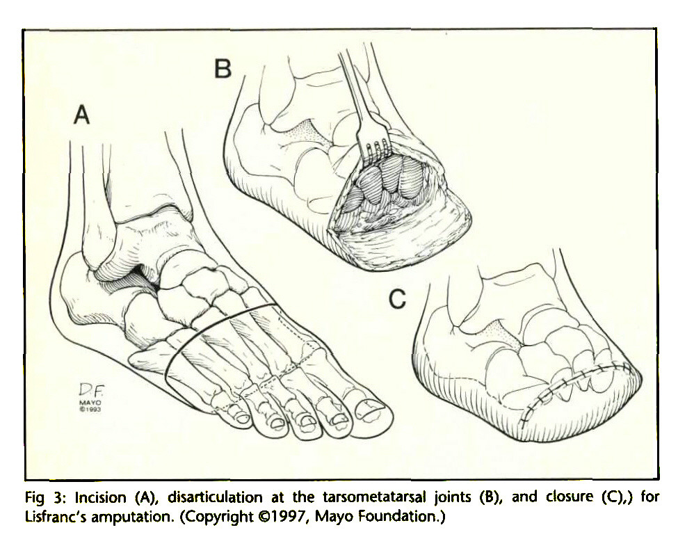 amputations of the foot and ankle review of techniques