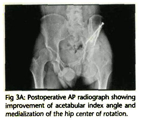 Fig 3A: Postoperative AP radiograph showing improvement of acetabular index angle and medialization of the hip center of rotation.