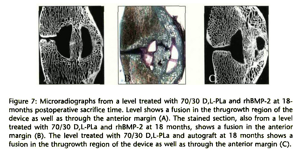 Figure 7: Microradiographs from a level treated with 70/30 D,L-PLa and rhBMP-2 at 18months postoperative sacrifice time. Level shows a fusion in the thrugrowth region of the device as well as through the anterior margin (A). The stained section, also from a level treated with 70/30 D,L-PLa and rhBMP-2 at 18 months, shows a fusion in the anterior margin (B). The level treated with 70/30 D,L-PLa and autograft at 18 months shows a fusion in the thrugrowth region of the device as well as through the anterior margin (C).
