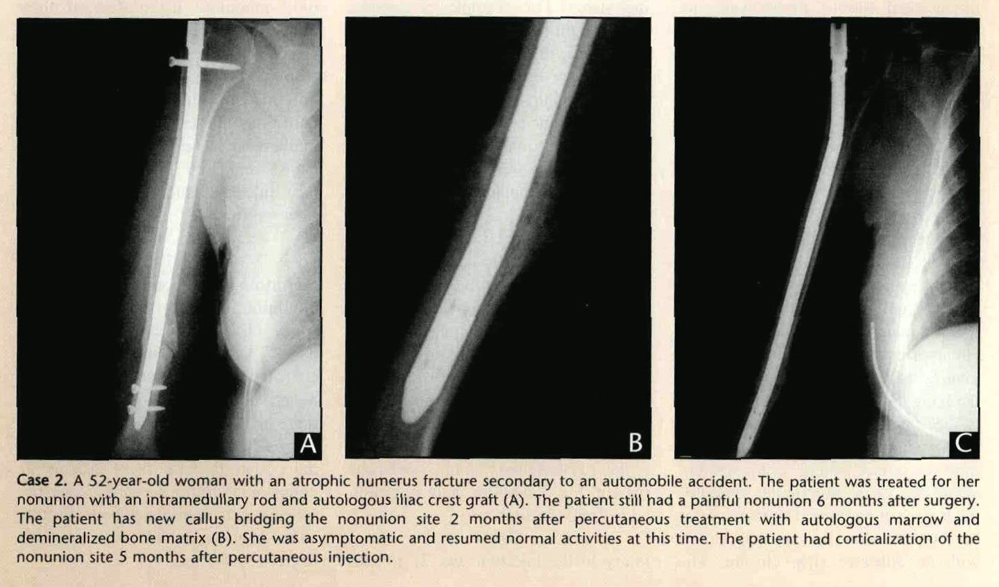 Case 2. A 52-year-old woman with an atrophic humerus fracture secondary to an automobile accident. The patient was treated for her nonunion with an intramedullary rod and autologous iliac crest graft (A). The patient still had a painful nonunion 6 months after surgery. The patient has new callus bridging the nonunion site 2 months after percutaneous treatment with autologous marrow and demineralized bone matrix (B). She was asymptomatic and resumed normal activities at this time. The patient had corticalization of the nonunion site 5 months after percutaneous injection.