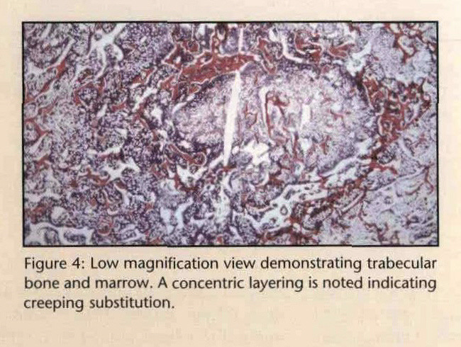 Figure 4: Low magnification view demonstrating trabecular bone and marrow. A concentric layering is noted indicating creeping substitution.