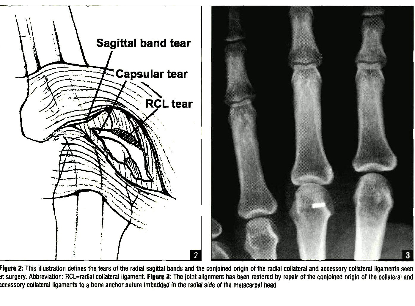 Complete Tear Of The Radial Collateral Ligament Of The Third