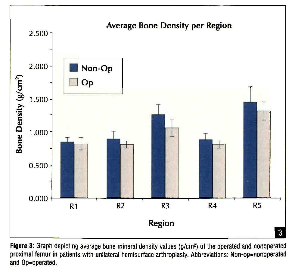 Figure 3: Graph depicting average bone mineral density values (g/cm2) of the operated and nonoperated proximal femur in patients with unilateral hemisurface arthroplasty. Abbreviations: Non-op=nonoperated and Op=operated.