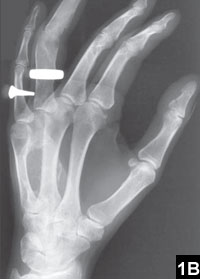 Fibrous Dysplasia Of The Fourth Metacarpal En Bloc Resection And