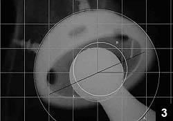 Figure 3: Radiograph demonstrating measurement of linear wear
