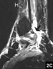 Figure 2C: MRI of the ankle joint