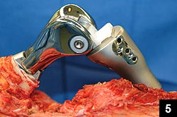 Figure 5: Another intraoperative photograph shows the implanted prosthesis, consisting of the hinged distal femur and proximal tibia prostheses