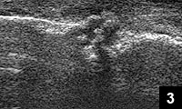 Figure 3: Ultrasound of the reduced fracture