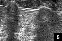 Figure 5: Fluoroscopic confirmation of ultrasound-assisted closed reduction and percutaneous pinning