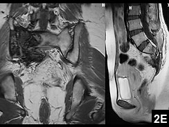 Figure 2E: Coronal (left) and sagittal (right) MRI show no evidence of local tumor recurrence