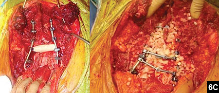 Figure 6C: A femoral allograft diaphysis and bone allograft was placed between the iliac bones