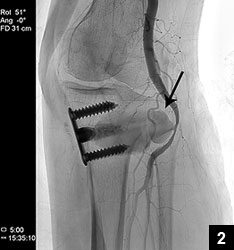 Figure 2: Femoral angiography study showing pseudoaneurysm (arrow) from the anterior wall of the popliteal artery