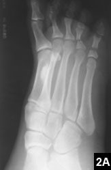 Figure 2A: Endosteal melorheostotic lesion in the first metatarsal