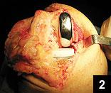 Figure 2: Definitive UKA implants in situ