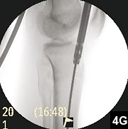 Figure 4G: Medullary reamers over the guide pin