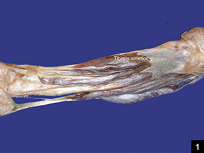 Figure 1: The muscular anatomy of the lower leg