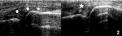 Figure 2: Longitudinal view of the extensor side of the first metacarpophalangeal joint