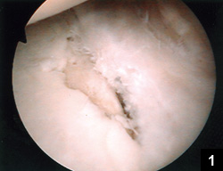 Figure 1: Arthroscopic view of a peripheral grade 4 chondral lesion