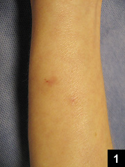 Figure 1: Snakebite wounds on the right volar forearm