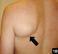 Figure 1B: Medial retraction of the teres major with forceful adduction of the arm