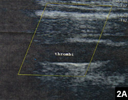 Figure 2A: A thrombus extending from the brachial axillary veins