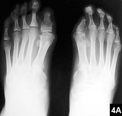 Figure 4A: Congenital malformation of the great toes