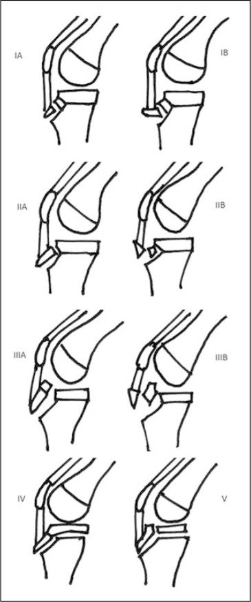 Classification of Tibial Tuberosity Fractures as Described by Sir Watson-Jones, with Further Modification by Ogden and Further Addition of Types IV and V.