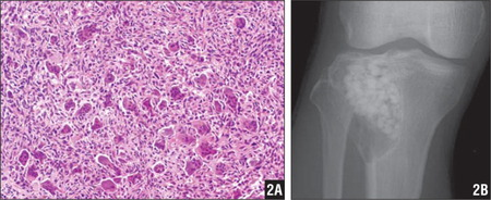 Photomicrograph demonstrating numerous osteoclast-like, multinucleated giant cells and spindle to polygonal mononuclear cells; the diagnosis was giant cell tumor of bone (hematoxylin-eosin, ×200) (A). Following biopsy, the defect was filled with beta-tricalcium phosphate, and 4 mg of zoledronic acid was locally administered into the tumor lesion (B).