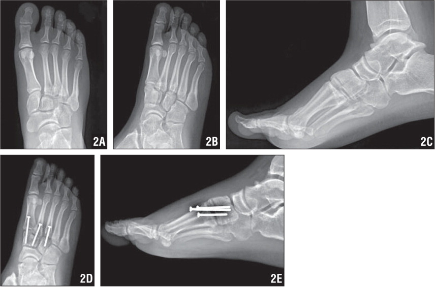 AP (A), oblique (B), and lateral (C) radiographs demonstrating a stage II Lisfranc injury as classified by Nunley and Vertullo.13 There is diastasis between the first and second metatarsals with no loss of midfoot arch height. Postoperative oblique (D) and lateral (E) radiographs showing hardware placement stabilizing the first through third tarsometatarsal joints.