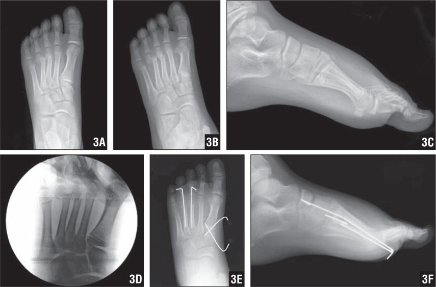 AP (A), oblique (B), and lateral (C) radiographs showing obvious fractures of the third and fourth metatarsal necks. The injury to the Lisfranc joint is more subtle. Intraoperative stress radiograph showing instability of the first tarsometatarsal joint (D). Postoperative oblique (E) and lateral (F) radiographs showing reduction and fixation of the third and fourth metatarsal neck fractures and pinning of the first tarsometatarsal joint.